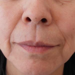 グロースファクターによるほうれい線治療 50代女性⑩