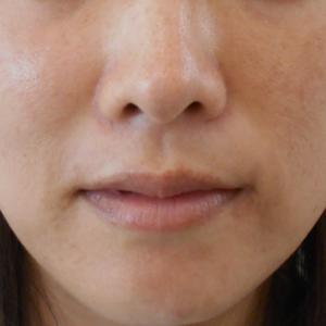 グロースファクターによるほうれい線治療 30代女性⑱