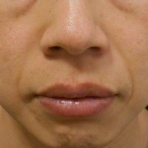 グロースファクターによるほうれい線治療 30代男性②