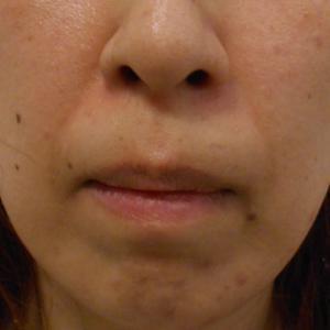 グロースファクターによるほうれい線治療 40代女性㉓