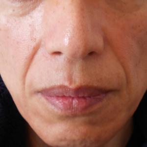 グロースファクターによるほうれい線治療50代男性①