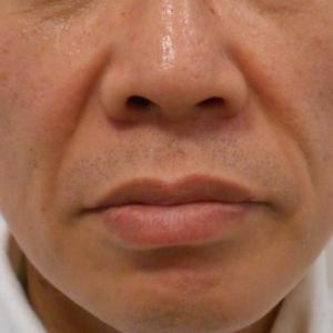 グロースファクターによるほうれい線治療 50代男性②