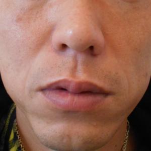 グロースファクターによるほうれい線治療 30代男性③
