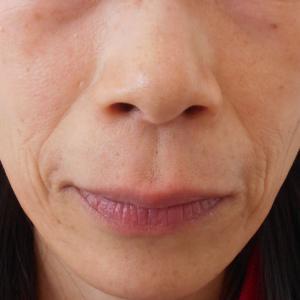 グロースファクターによるほうれい線治療 50代女性⑪