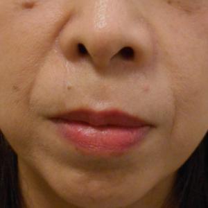 グロースファクターによるほうれい線治療 50代女性⑫