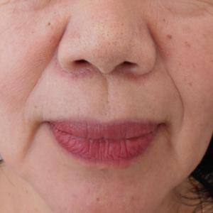 グロースファクターによるほうれい線治療 60代女性①