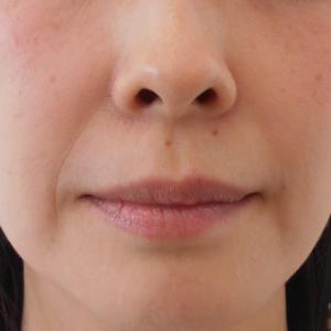 グロースファクターによるほうれい線治療 40代女性㉔