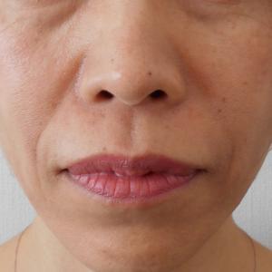 グロースファクター治療によるほうれい線治療 50代女性①