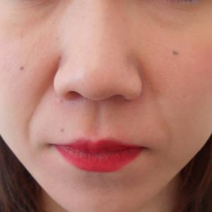 グロースファクターによるほうれい線治療 20代女性①