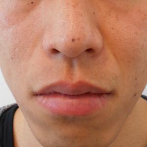 グロースファクターによるほうれい線治療 20代男性①