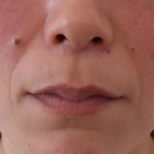 グロースファクターによるほうれい線治療 40代女性④