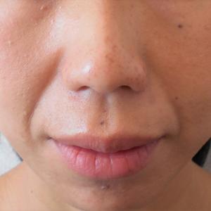 グロースファクターによるほうれい線治療 40代女性⑤