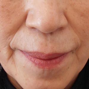 グロースファクターによるほうれい線治療 60代女性③