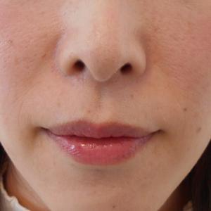 グロースファクターによるほうれい線治療 30代女性②