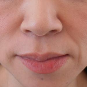 グロースファクターによるほうれい線治療 40代女性⑥