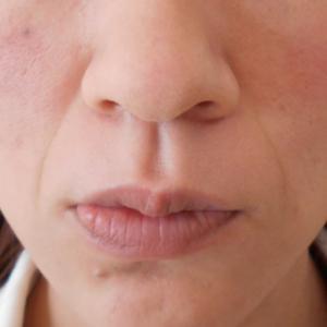 グロースファクターによるほうれい線治療 30代女性③
