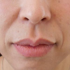 グロースファクターによるほうれい線治療 40代女性⑦