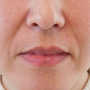 グロースファクターによるほうれい線治療 40代女性⑧