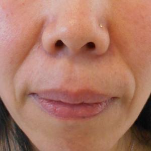 グロースファクターによるほうれい線治療 40代女性⑨