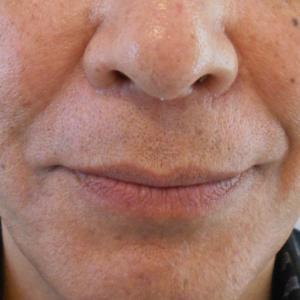 グロースファクターによるほうれい線治療 60代男性①