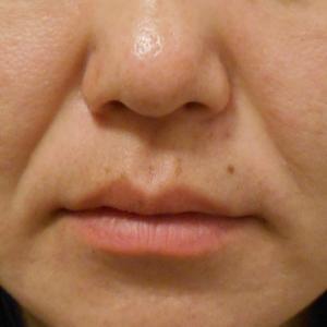 グロースファクターによるほうれい線治療 30代女性④