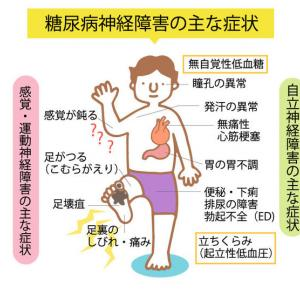 糖尿病神経障害