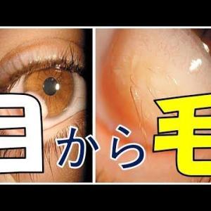 角膜輪部皮様嚢腫 目から毛が生えてくる奇病