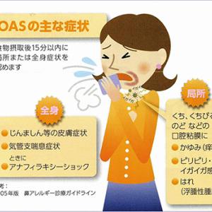 リンゴやメロンへの口腔アレルギー症候群 実は花粉症?