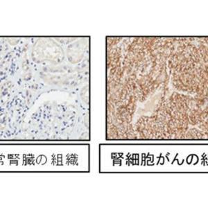 腎細胞がんに特異的に現われるタンパク質を発見 千葉大、腫瘍マーカーや抗がん剤への活用期待