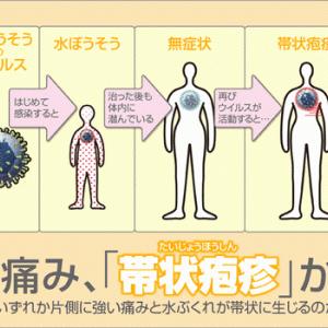 疲れやストレスが招く 帯状疱疹、若いひとにも広がる