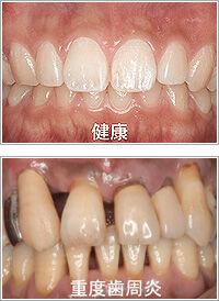 口臭・虫歯・歯周病…。「オーラルケア」のマイスターがオススメする口内トラブル予防法
