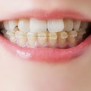 高2からの歯科矯正、ワイヤー装着開始!と費用