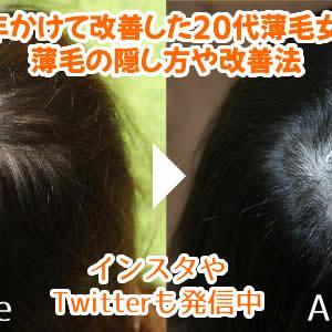 つむじが薄い女性へ!薄毛を改善した方法と7年間の経過写真を公開します!