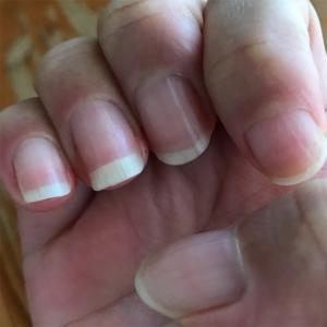 爪を育てています。