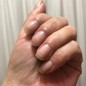 爪に透明感が出て来ました。