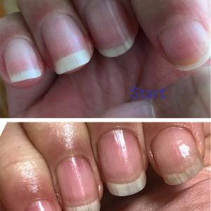 爪育て12週間経過