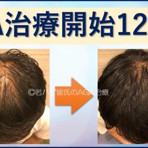【AGA治療12か月目】薄毛治療方法は内服薬だけ!1年間の病院治療体験まとめ