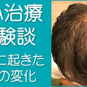 【AGA治療体験談】治療効果は抜群!34歳の彼氏がAGA治療をしてみた結果