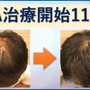 【AGA治療11か月目】薄毛彼氏の育毛・発毛ブログ!育毛剤は効果なし?