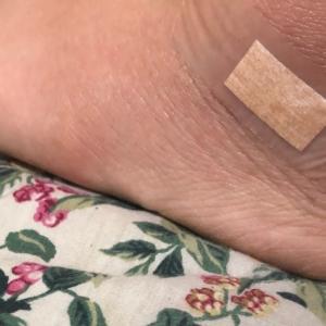 靴擦れで足が腫れる!?