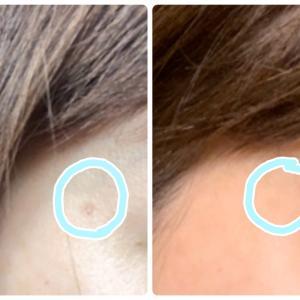 美容皮膚科でフォトフェイシャルM22を受けた。費用や効果は??