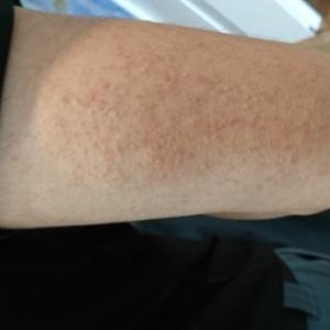 頑固な二の腕のブツブツを治したいなら必見!原因と正しい肌ケア