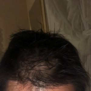 頭皮が痒い時の対処法(育毛6日目写真報告付き)