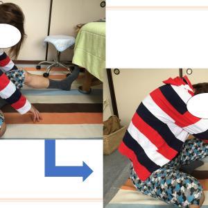 【ビフォーアフター写真】腰痛には○○しましょう(まだ間に合う!)