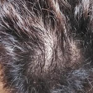 イワシ男の育毛日記(50)~イワシ缶を9ヶ月食べ続けた育毛の成果は?【2019.11.07】