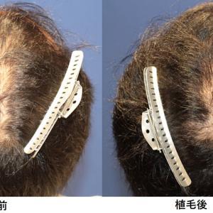 ハゲ治療を開始してからの頭髪の変遷~植毛編