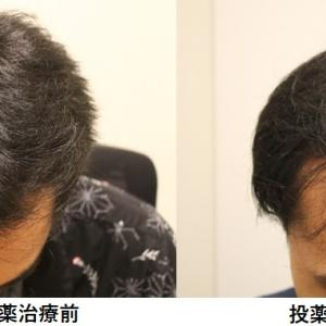 ハゲ治療を開始してからの頭髪の変遷~クリニックでの治療編Part1