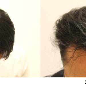 ハゲ治療を開始してからの頭髪の変遷~クリニックでの治療編Part2