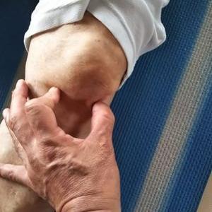 膝の下側の痛みのセルフケア
