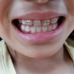 【歯科矯正】6か月目ワイヤー矯正に入る